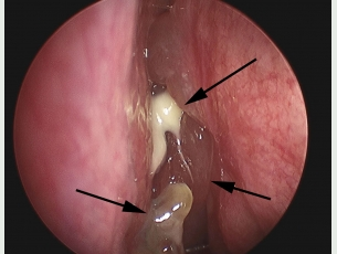 Frontal sinus blocked by infection and nasal polyps.
